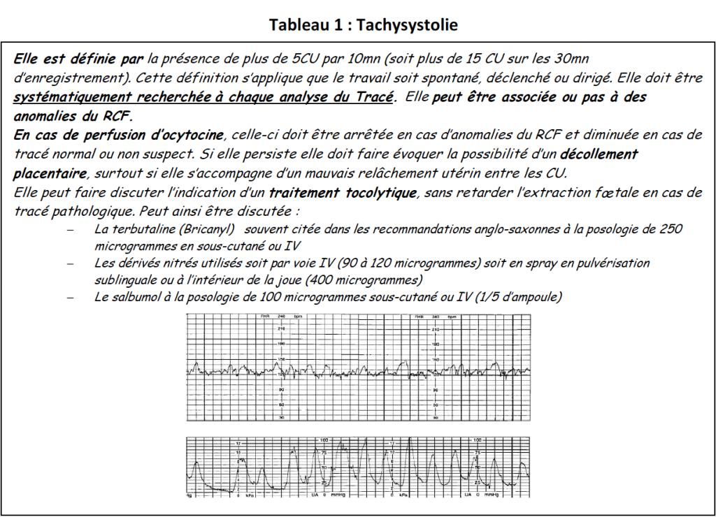 Tab1-tachysystolie