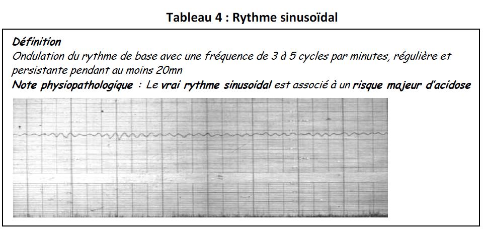 Tab4-rythme sinusoidal
