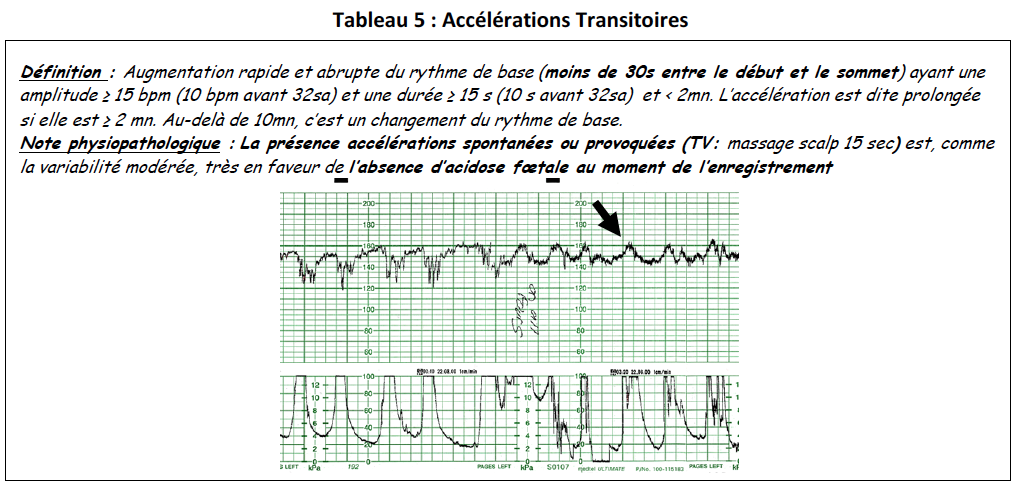 Tab5-accelerations