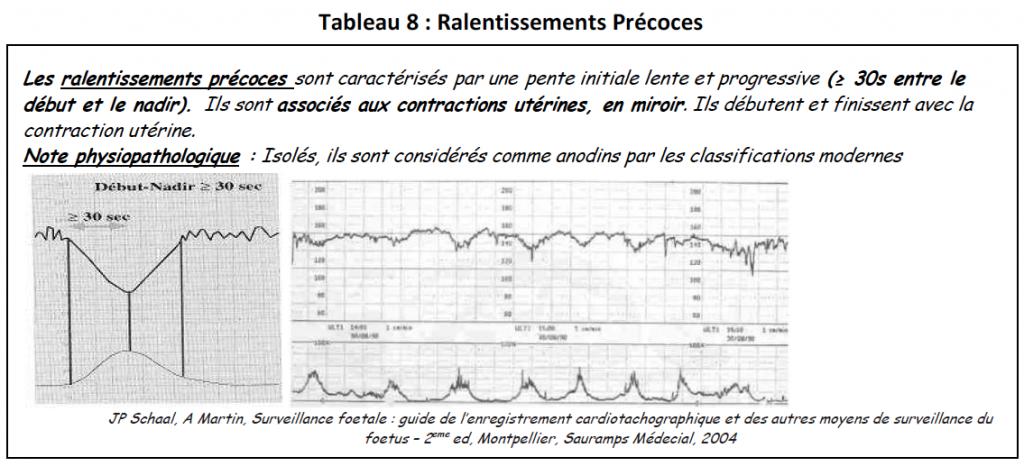 Tab8-ralentissements