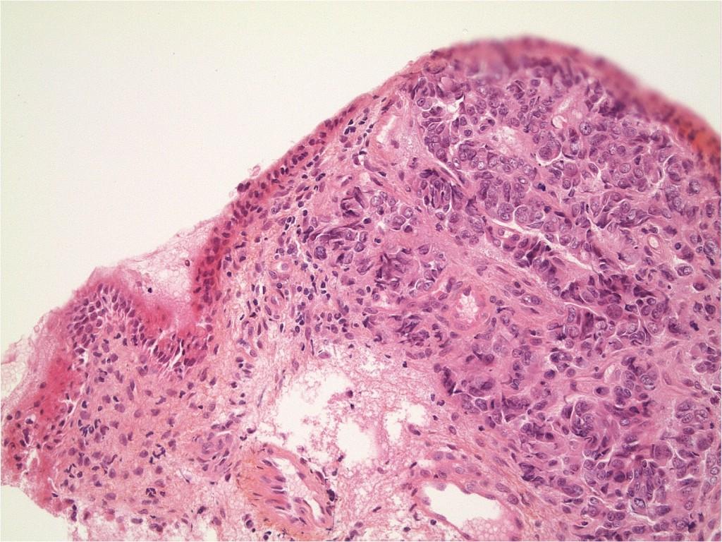 PrBernard-adenocarcinome